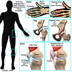 Arthritis Complete Injury Guide