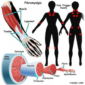 Fibromyalgia Complete Injury Guide