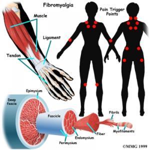Fibromyalgia Complete Injury Guide
