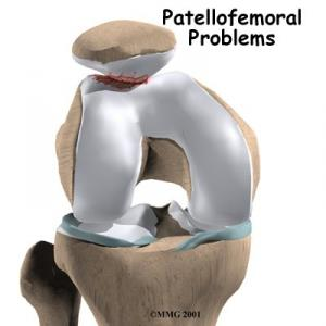 The Athlete's Knee Pain: Patellofemoral Injury Guide