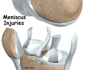 Meniscal Injuries Complete Guide
