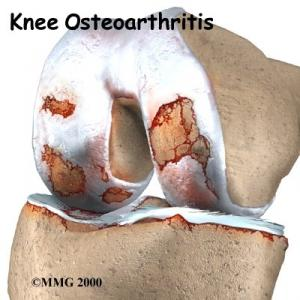 Knee Osteoarthritis Complete Injury Guide