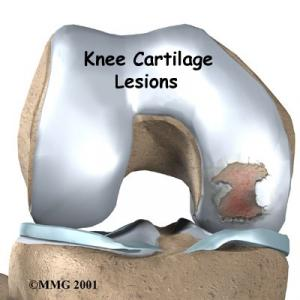 KNEE CARTILAGE Complete Injury Guide