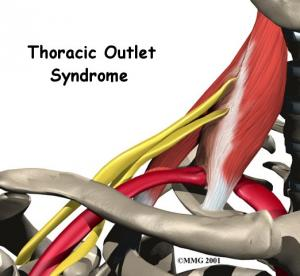 THORACIC OUTLET SYNDROME Complete Injury Guide