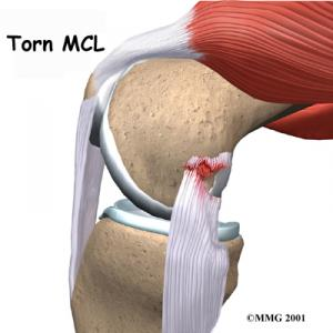 Knee Collateral Ligament Complete Guide