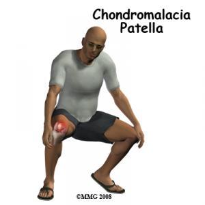Chondromalacia Patella Complete Guide