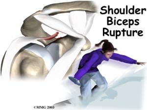 Biceps Rupture Complete Guide