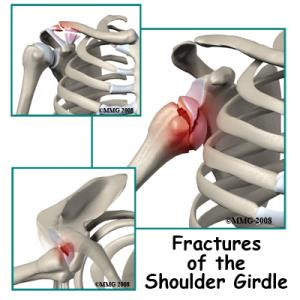 Adult Shoulder Fractures Complete Guide