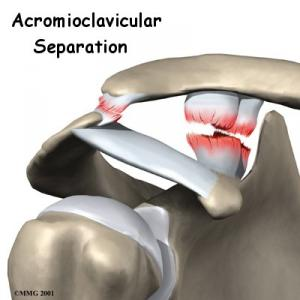 AC Joint Separation Complete Guide