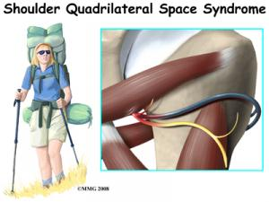 Quadrilateral Space Syndrome Complete Guide