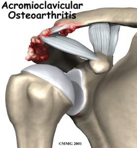 AC JOINT ARTHRITIS Complete Injury Guide