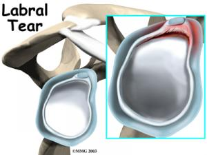 Shoulder Labral Tear Complete Guide