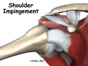 Shoulder Impingement Complete Guide
