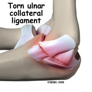 Ulnar Collateral Ligament Injuries Complete Guide