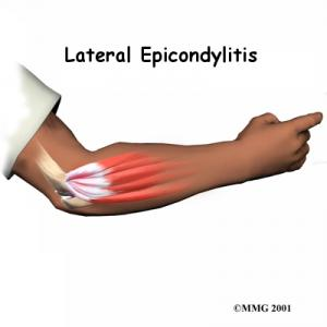 TENNIS ELBOW (LATERAL EPICONDYLITIS) Complete Injury Guide
