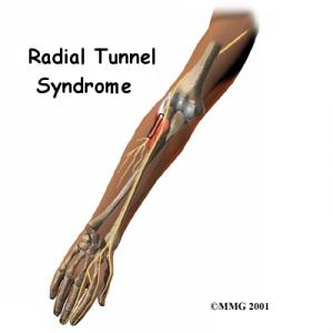 Radial Tunnel Syndrome Complete Guide