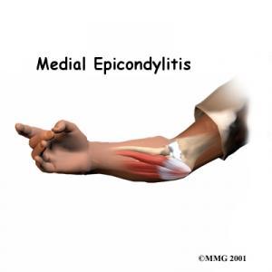 Golfers Elbow (Medial Epicondylitis) Complete Guide