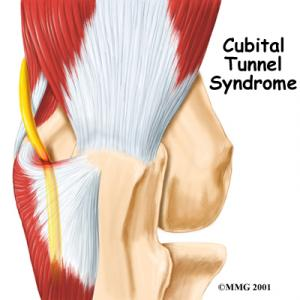 Cubital Tunnel Syndrome Complete Guide