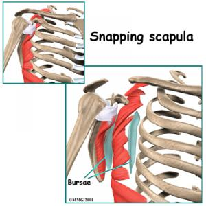 Snapping Scapula Syndrome Complete Guide