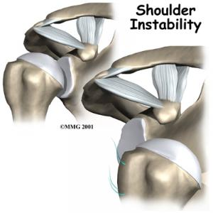 Shoulder Instability Complete Guide