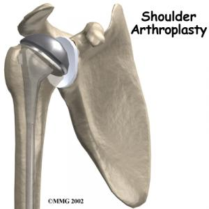 Shoulder Replacement Complete Guide