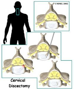 Cervical Discectomy Complete Guide