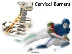 Cervical Burners/Stingers Complete Guide