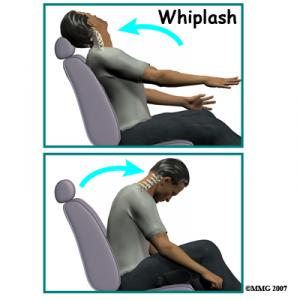 Whiplash Complete Guide