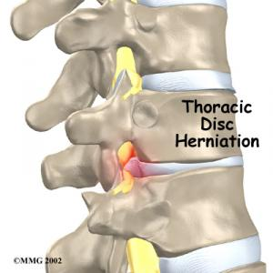 Thoracic Disc Herniation Complete Guide