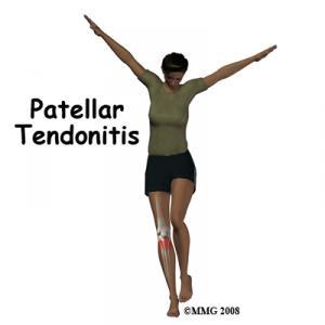 PATELLAR TENDINITIS Complete Injury Guide
