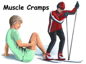 Muscle Cramps Complete Guide