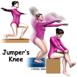 JUMPER'S KNEE Complete Injury Guide