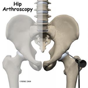 Hip Arthroscopy Surgery Guide