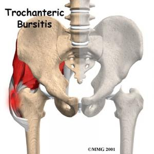 TROCHANTERIC BURSITIS Complete Injury Guide