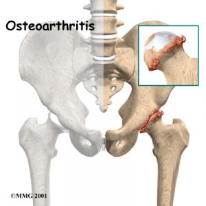Hip Osteoarthritis Complete Guide