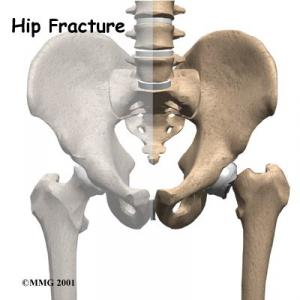 Hip Fracture Complete Guide