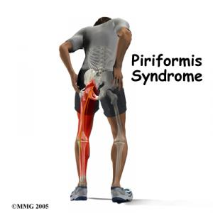 Piriformis Syndrome Complete Guide