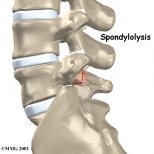 Lumbar Spondylolysis Complete Guide