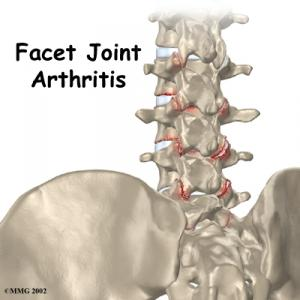 Lumbar Facet Arthritis Complete Guide