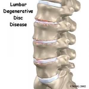 Lumbar Degenerative Disc Disease Complete Guide