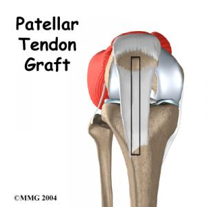 ACL Patellar Tendon Graft Surgery Guide
