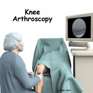 Knee Arthroscopy Surgery Guide