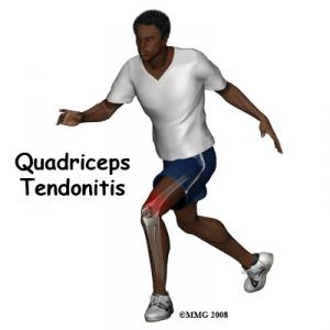 Quadriceps Tendonitis Complete Guide
