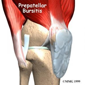 PREPATELLAR BURSITIS Complete Injury Guide