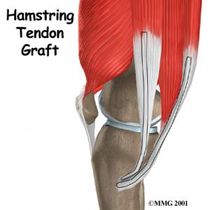 ACL Hamstring Graft Surgery Guide