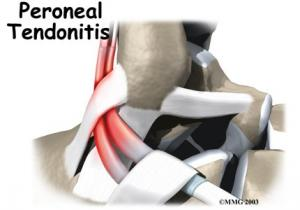 PERONEAL TENDON Complete Injury Guide